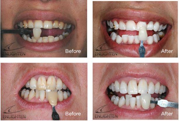 Whitening Handsworth Dental Care